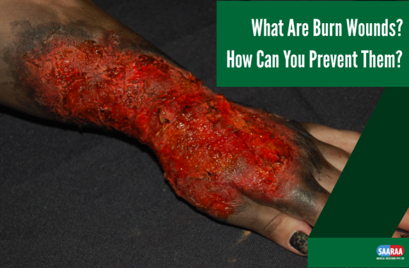 What Are Burn Wounds? How Can You Prevent Them?