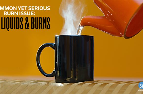 hot liquid burn issues