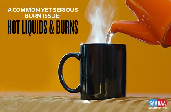 hot liquid burns issues 2