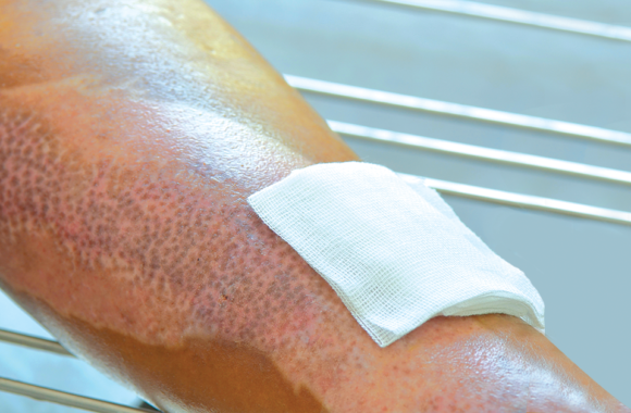 Types of Dressing for Burn Wounds