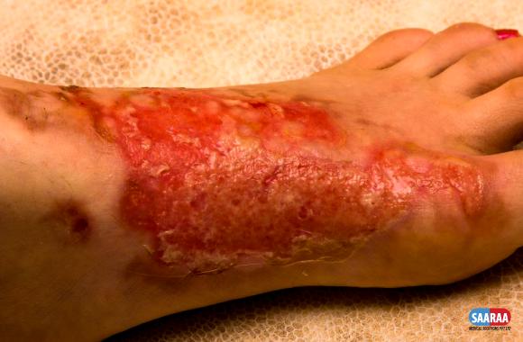 Initial Management of Thermal Burn Injuries