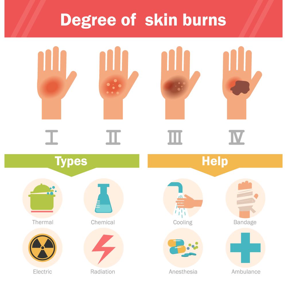 Degree of skin burns