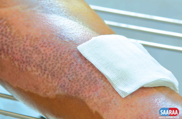 Types of Dressings for Burn Wounds