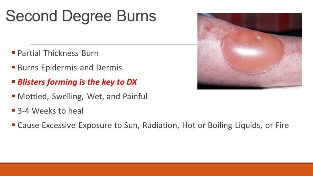 blister burns