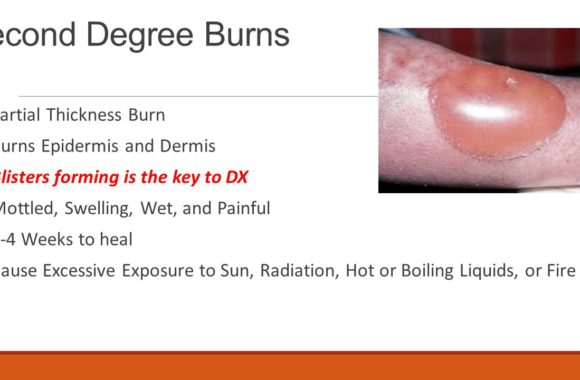 Effects of second-degree burns: Blister burns