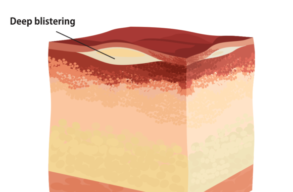 Causes of second-degree burns: Blister burns